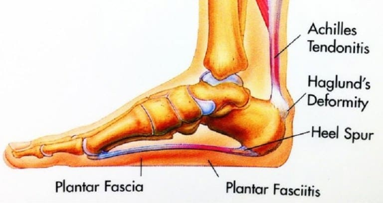 Plantar Fasciitis can be relieved with PEMF.
